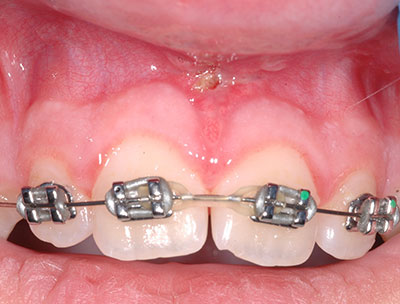 Laser Dental Treatment in Dallas Fort Worth Area