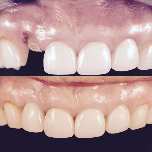 dental implant s