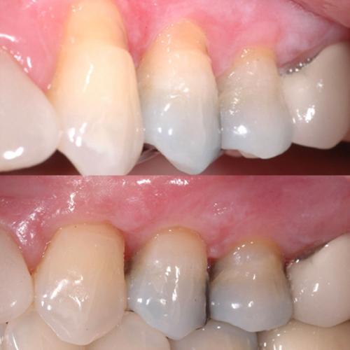 soft tissue graft s
